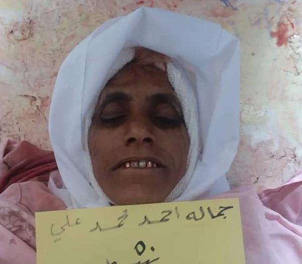 مقتل إمرأة وإصابت أخرى برصاص قناص حوثي بتعز